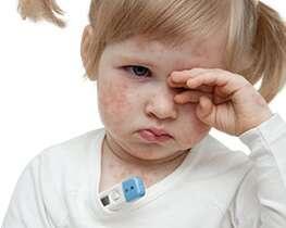 Maladies infantiles – La rougeole